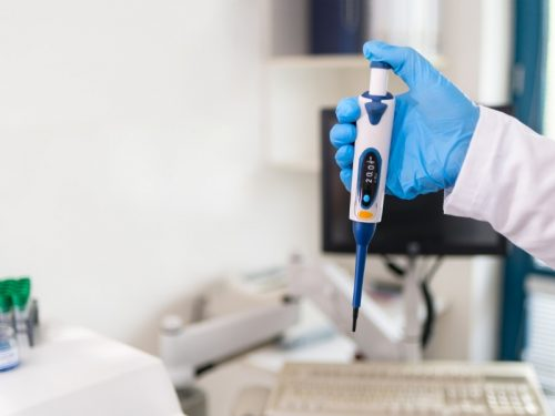 Paracoccidioidomicose laboratory technician holding a pipette tool in his hand in a blue picture id1277027038
